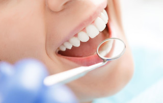 Regular Teeth Cleaning